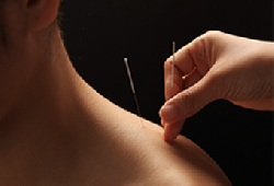 Anna Health LLC to Provide Free Acupuncture Treatments this Thanksgiving 2015